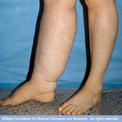 Lymphedema Treatment Hospital In India | Fortis Healthcare
